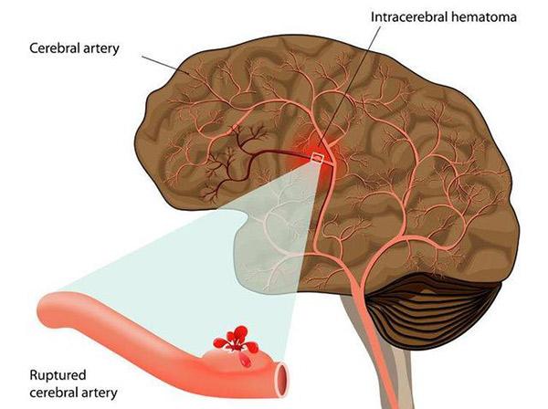 脑溢血的前兆及后遗症